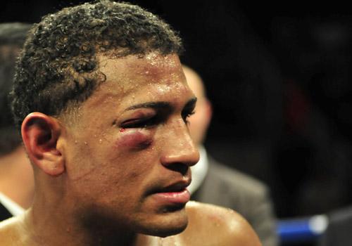 James Kirkland TKO 6 Joel Julio - Pound4Pound.com - P4P ...